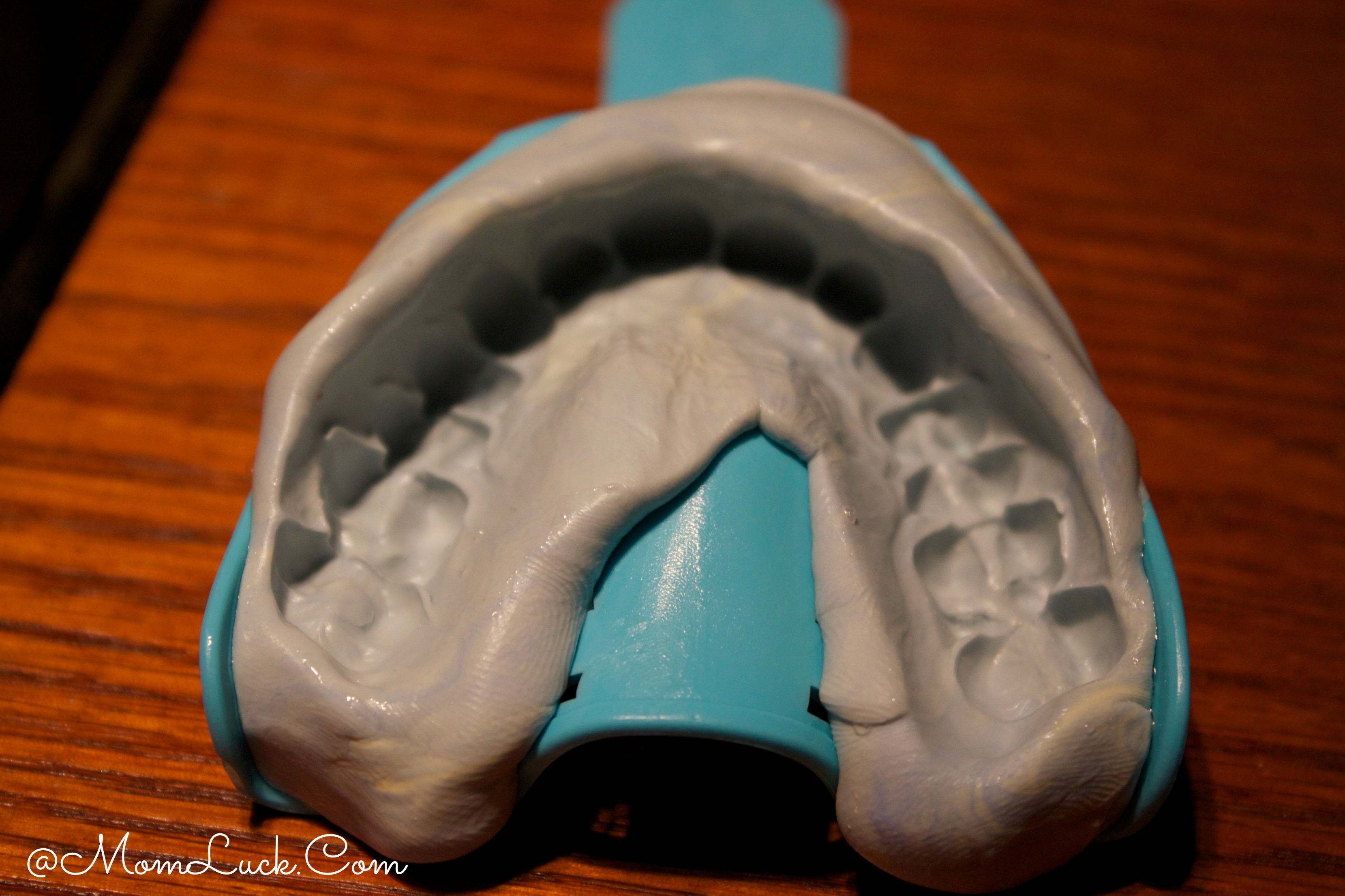 How To Make A Mold Of Your Teeth At Home