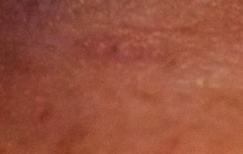 what does skin cancer look like-basal cell carcinoma