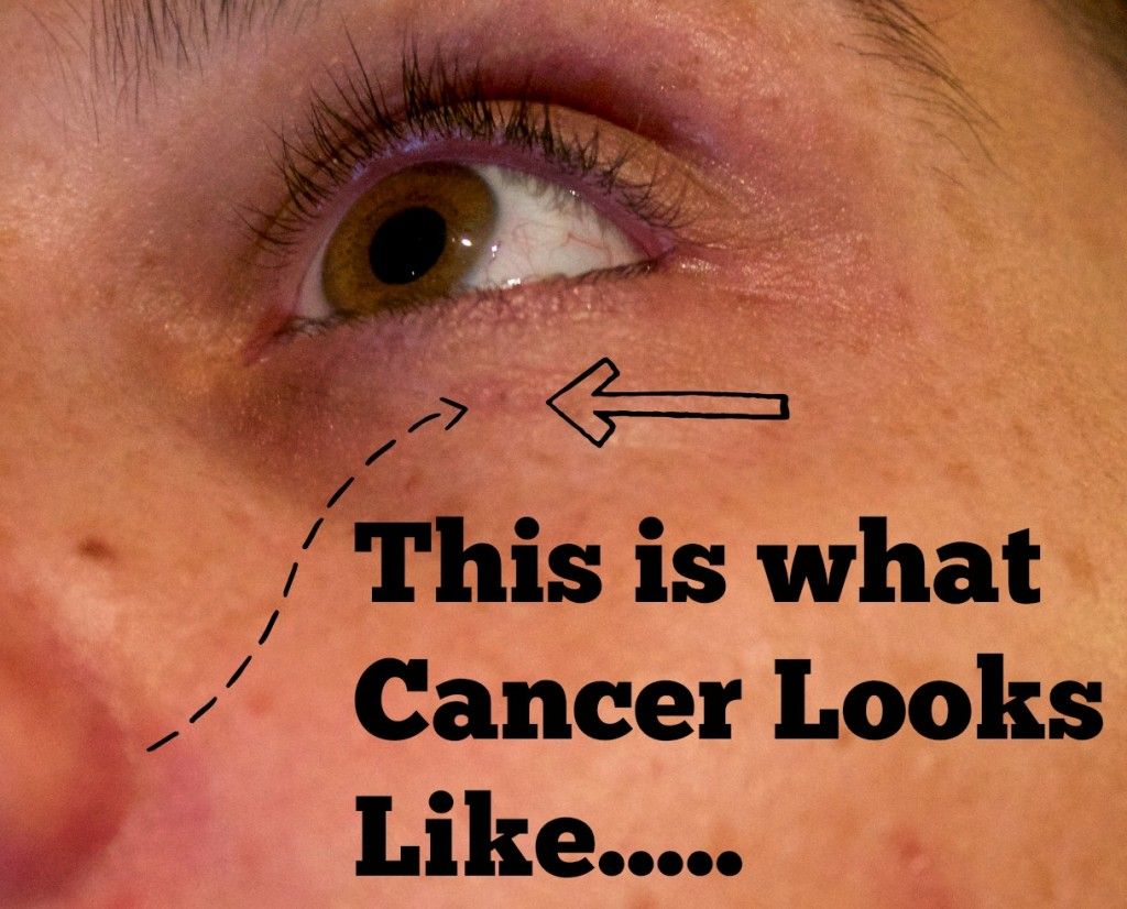 what does skin cancer look like-basal cancer