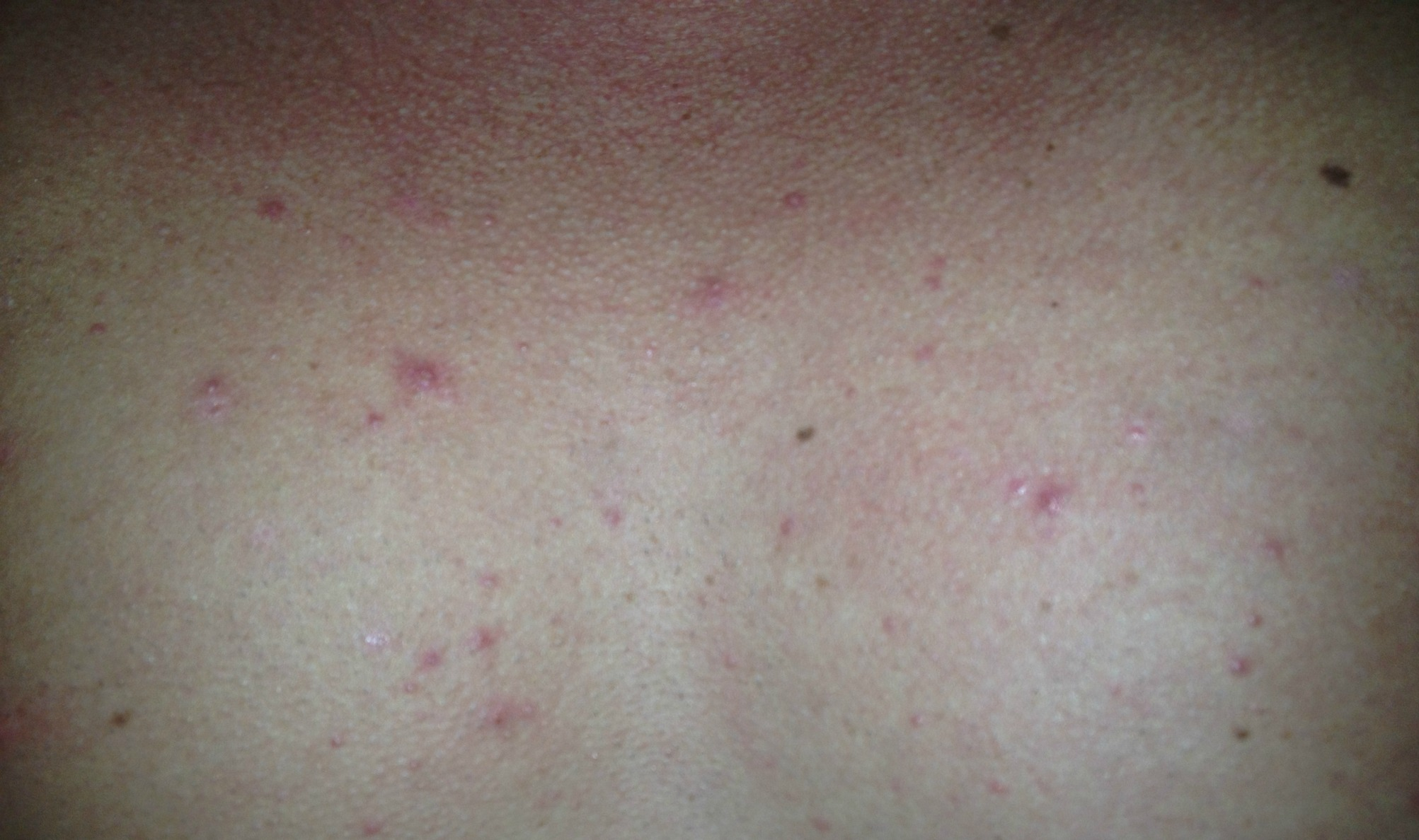 proactiv+-acne pictures